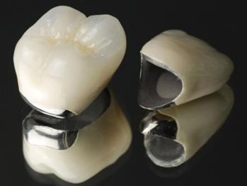 セラミック人工歯