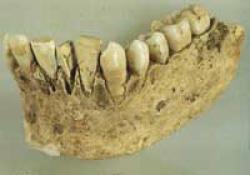 マヤ族の貝殻インプラント